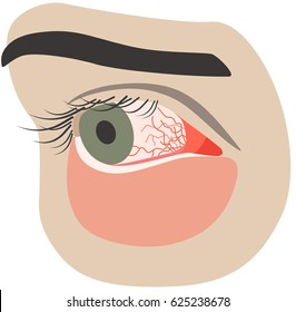 Chronic conjunctivitis eye with a red iris and pus close-up