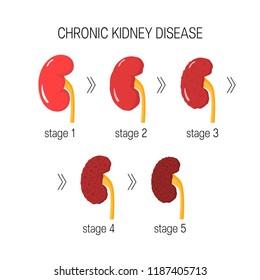 Chronic kidney disease (CKD) concept. Vector illustration in flat style