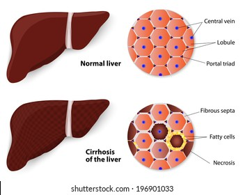 Cirrhosis of the liver and Normal liver. Structure of the liver. vector diagram