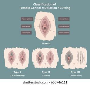 Classification of Female Genital Mutilation / Cutting (FGM/C) / Infographics / Elements