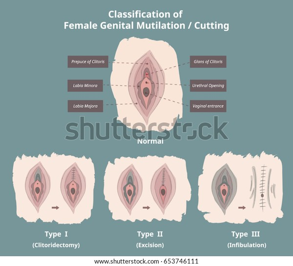 Classification of Female Genital Mutilation / Cutting (FGM/C) / Infographics / Elements