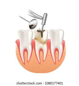Clean Caries by Tooth Dental Drill. 3d Realistic Vector Illustration of Dentistry Health Care.