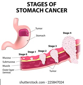 The clinical stages of stomach cancer. Classification of Malignant Tumours