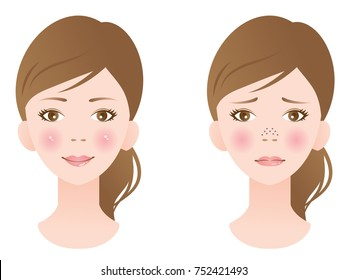 clogged pores and clean pores on nose of female face. before and after skin care treatment
