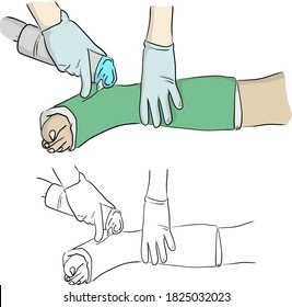 close-up hand cutting plaster cast at leg and foot patient to immobilize after fracture injury vector illustration sketch doodle hand drawn with black lines isolated on white background