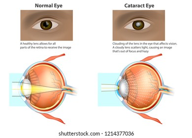 Сataract is a clouding of the lens. Medical illustration of a normal eye and an eye with a cataract, clouded lens