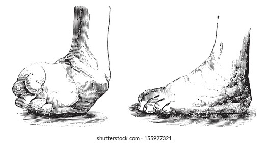 Clubfoot or Club foot or Congenital talipes equinovarus (CTEV) equine before and after the operation, vintage engraved illustration. Usual Medicine Dictionary by Dr Labarthe - 1885.