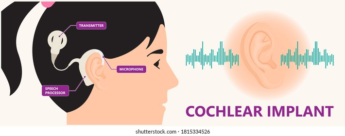 Cochlear implant device electrically stimulates nerve medical aid ear sound wave adults hard middle exam