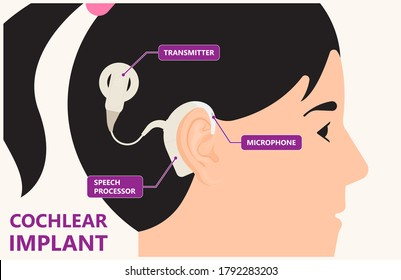Cochlear implant the device that electrically stimulates the cochlear nerve