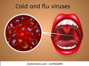 Cold and Flu Viruses Vector Concept with Bacteria, Microbes or Viruses under Microscope Magnifiation on Infected, Enlarged and Inflamed Tonsils in Woman Throat Illustration. Respiratory Viral Disease
