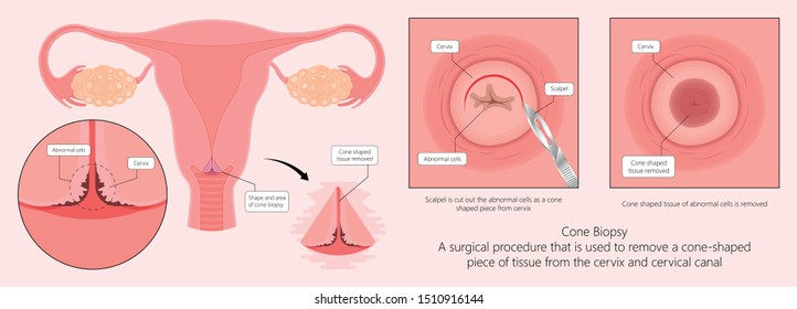 Cold knife cone biopsy Loop Electrosurgical Excision Procedure LEEP Large Loop Excision of the Transformation Zone LLETZ remove tissue from the cervix for precancerous cell laser diathermy per treat