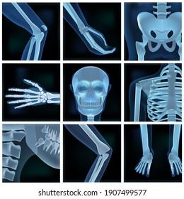 Collage Of Many X-rays Photos. EPS10 Vector