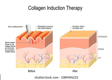 Collagen induction therapy (microneedling) is a surgical for remove wrinkles, scars, stretch, marks, pigmentation. skin needling procedure, repeatedly puncturing the skin with tiny, sterile needle