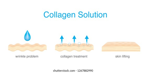 Collagen Treatment wrinkle on Skin to be smoother and younger. Illustration about beauty and medical.
