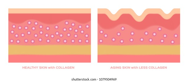 collagen in younger skin and aging graphic