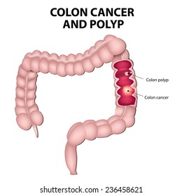 Colon cancer and colon polyps. Polyps have the potential to turn into cancer if the remain in the colon.