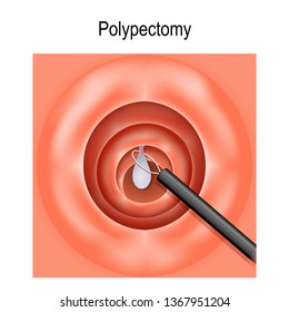 Colorectal polyp and Polypectomy. Vector diagram for medical, biological and scientific use