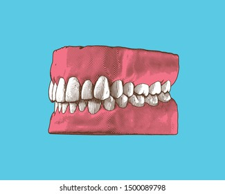 Colorful vintage engraving drawing tooth and gum close jaw represent for dental occlusion in perspective side camera view illustration isolated on retro green turquoise background