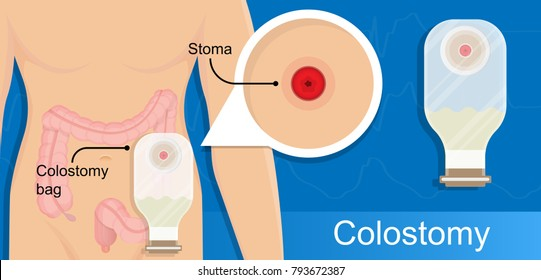 Colostomy bag stoma ostomy patient screening cancer colon disease treatment therapy excretion disposal stool inflammation Crohn's disease bowel surgical procedure diverticulitis diagnose treat nurse