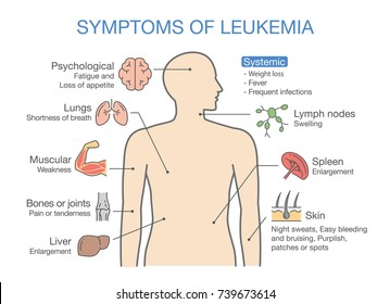 Enlarged lymph nodes images stock photos vectors shutterstock common symptoms and signs of leukemia medical illustration ideal for cancers diagram ccuart Gallery
