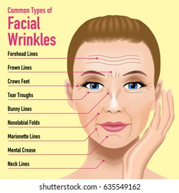 Common Types of Facial Wrinkles. cosmetic surgery. woman facial treatment concept.