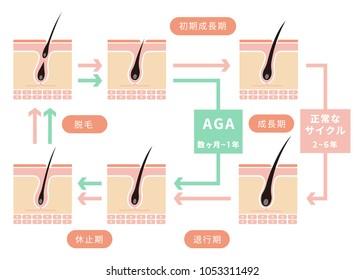 Comparative illustration of normal hair cycle and AGA ( androgenetic alopecia)/ japanese. Seichouki (anagen) , Taikouki (catagen),kyuushiki (teloen) etc.