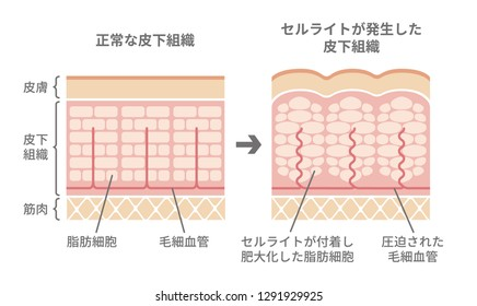 Comparative illustration of normal skin and cellulite's skin (Japanese) / translation: Normal skin Cellulite skin  Dermis Hypodermis Muscles Fat cells  Capillary  Fat cells enlarged.
