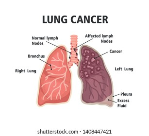 Comparison between healthy lung and cancer lung