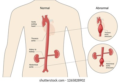 The comparison between normal aorta and aortic aneurysm in the thoracic and abdominal area, healthcare and medical illustration about injury