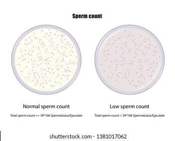 Comparison between normal and low sperm count, vector illustration eps10