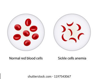 Comparison between Normal red blood cells and Sickle cells anemia, Scientific study