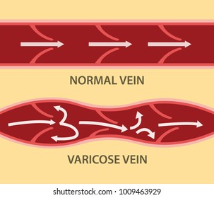 comparison compare between normal vein and varicose vein in horizontal alignment
