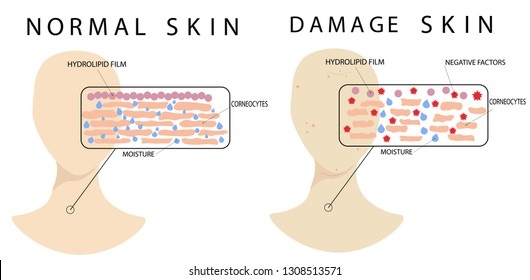 comparison and difference of normal and damage skin epidermis structures, vector infographic isolated on white  background