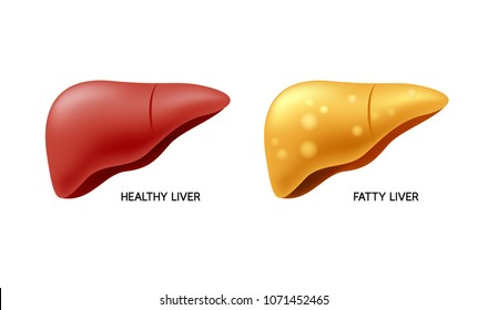 Comparison of healthy liver and fatty live. Liver Disease. Illustration info-graphic, isolated on white background.