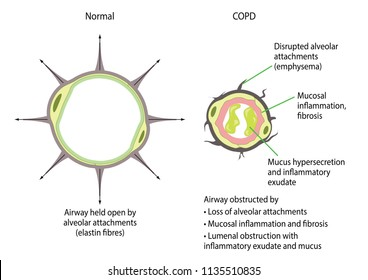 Comparison of a normal airway and one with chronic obstructive pulmonary disease (COPD)