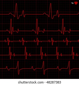 complete set of cardiograms