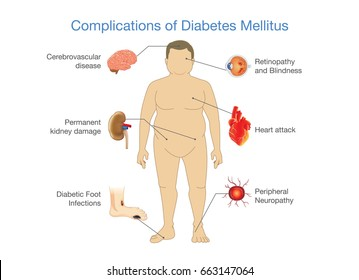 Complications of Diabetes Mellitus in fat people. Illustration with information about medical and health.