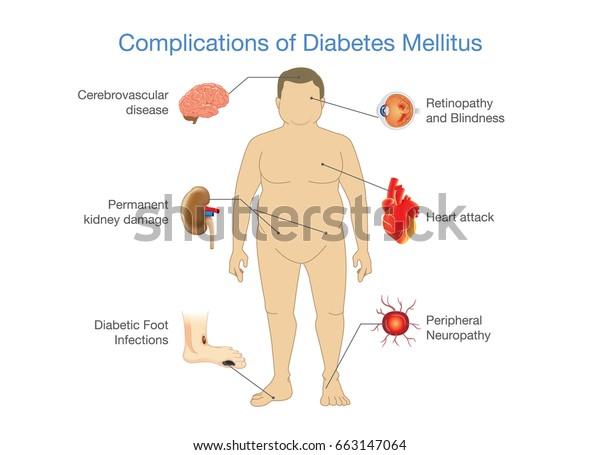 la diabetes mellitus y sus complicaciones del