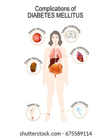 Complications of diabetes mellitus: nephropathy, Diabetic foot, neuropathy, retinopathy, encephalopathy, cardiomyopathy. Affected organs. silhouette of Woman with internal organs