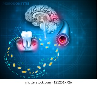 Complications of gum disease Periodontitis.  Bacteria from inflamed gums can enter in to the blood stream and affect other organs such as brain