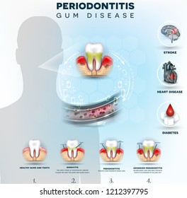 Complications of gum disease, Periodontitis detailed illustration. Bacteria from inflamed gums can enter in to the blood stream and affect other organs such as brain, heart and cause diabetes