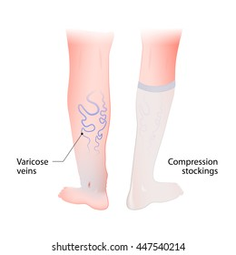 Varicose Vein Treatment: Which Approach Is Best for You? | University Health News