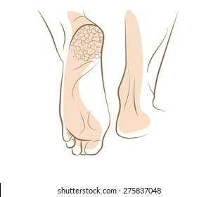 Concept of foot fungus with cracked heel, vector sketch