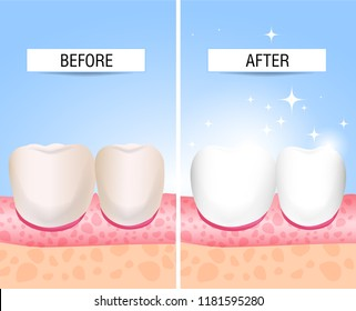The concept of healthy and diseased tooth. Visual aid for students, dentists, patients of the clinic. Defeat caries, the focus of destruction in the teeth. Vector illustration