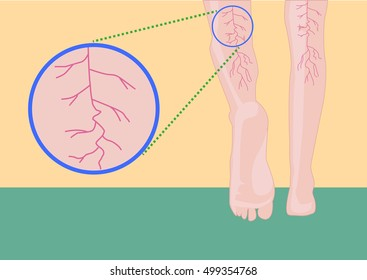 A concept of muscular or leg problem like muscle spasms, cramps, varicose and spider veins or medical conditions due to age or sports. Editable Clip art