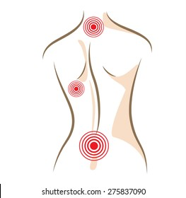Concept of woman back pain, vector sketch