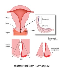 Cone biopsy of cervix to remove areas of abnormal cells in the ectocervix.