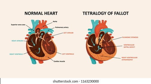 Congenital disease of the heart: Ventricular septal defect, Right ventricular hypertrophy, Pulmonic stenosis