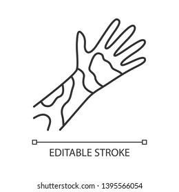 Contact dermatitis, hives linear icon. Thin line illustration. Skin redness, rash, irritation. Eczema, psoriasis contour symbol. Food allergy symptom. Vector isolated outline drawing. Editable stroke