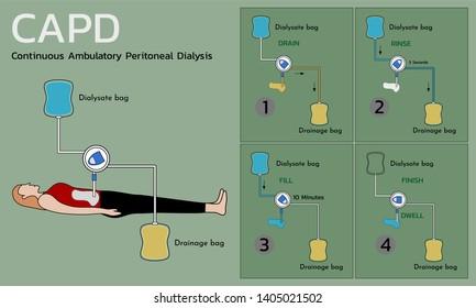 Continuous Ambulatory Peritoneal Dialysis (CAPD) , vector illustration